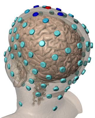 Marom Bikson Brain Stimulation Research